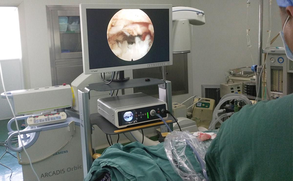 椎间孔镜手术应用案例
