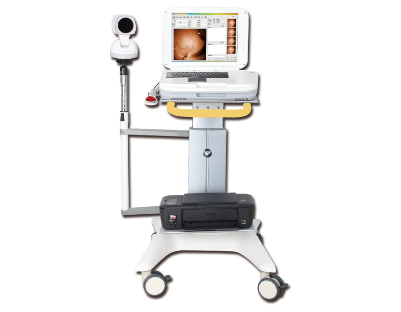 YKD-1004 红外乳腺检查仪+台车