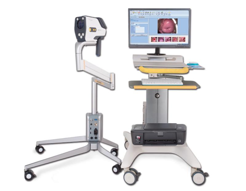 YKD-3001 数码电子阴道镜