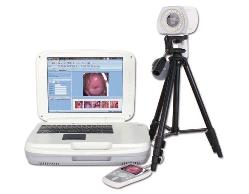 YKD-3004 数码电子阴道镜
