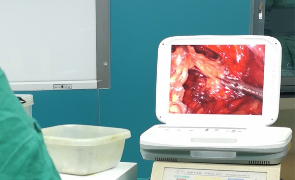 【腹腔镜篇】腹腔镜疝气手术,您知道吗?